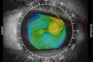 Implante de lentes multifocales intraoculares